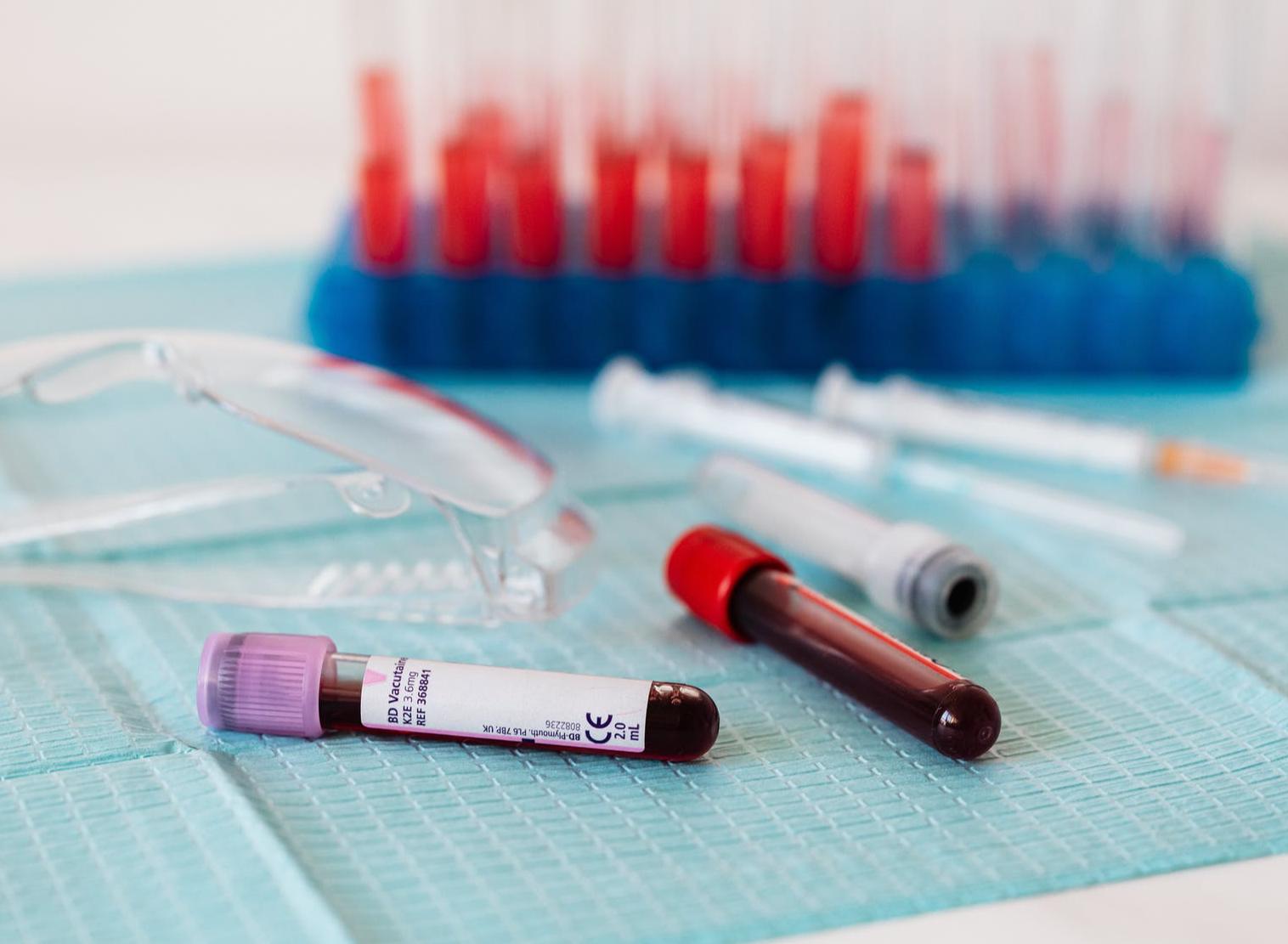 Herz-Kreislauf-Erkrankungen: Wie liest man seine Bluttests richtig?