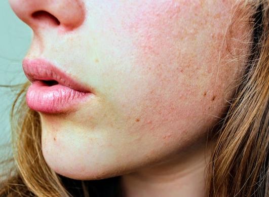 Wie können Sie mit der Kälte umgehen, wenn Sie an atopischer Haut leiden?