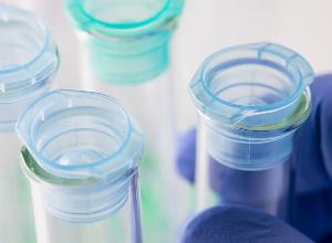 Medizinische Forschung über Lupus: hin zu weniger toxischen Behandlungen und zu personalisierter Medizin